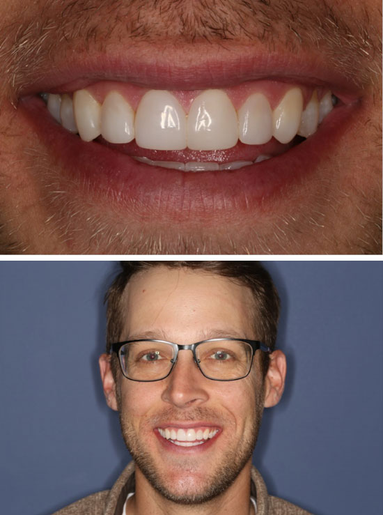 Invisalign and Composite Bonding After