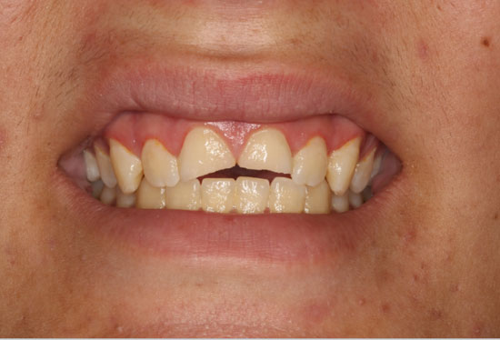 Invisalign and Crowns Before