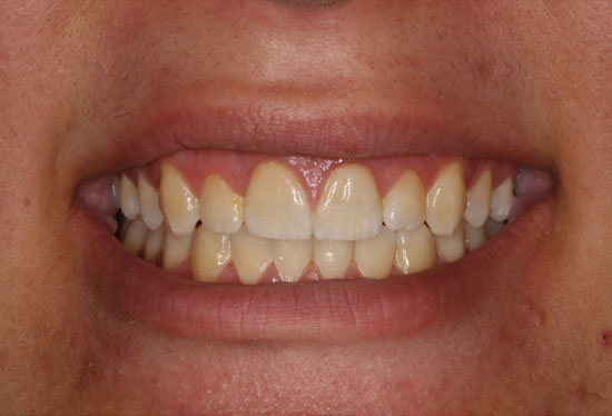 Invisalign and Crowns After