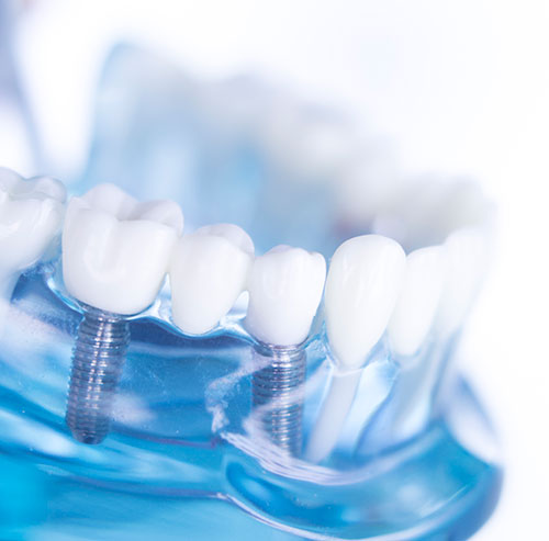 Dental Implants and Implant Supported Dentures in Omaha, NE - All Smiles Family Dentistry